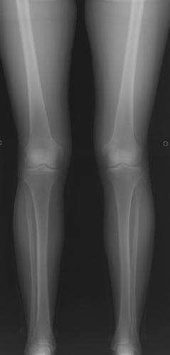 Пациентке сломали кости, но девушка сама напросилась. Только так она смогла исполнить свою давнюю бьюти-мечту