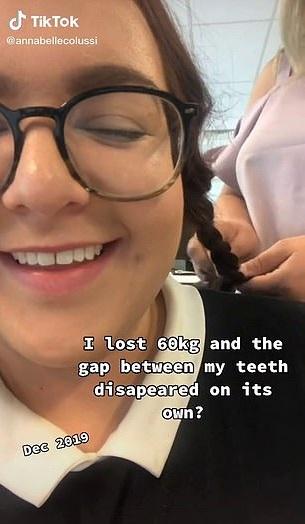 Студентка избавилась от щели между зубами без вмешательства ортодонта. Ради улыбки мечты стоило лишь похудеть