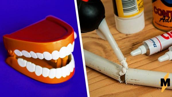Почему не стоит открывать тюбик суперклея зубами. Гений рискнул и на восемь часов забыл, как пользоваться ртом