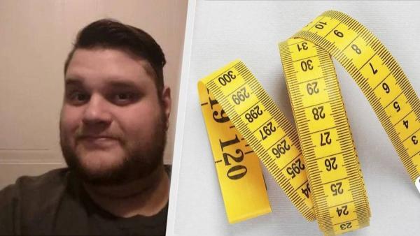 Мужчина стал терять вес, но перемены оказались непредсказуемыми. Торчать из-под кожи стали не кости, а стёкла