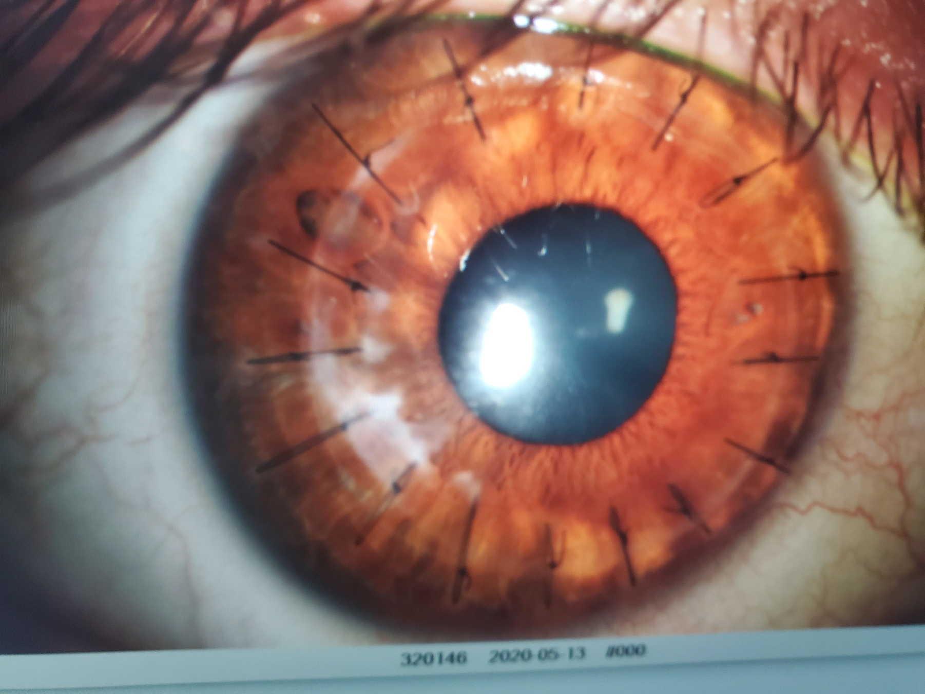 Парень показал глаз после операции, и люди уверены: он точно видит духов.