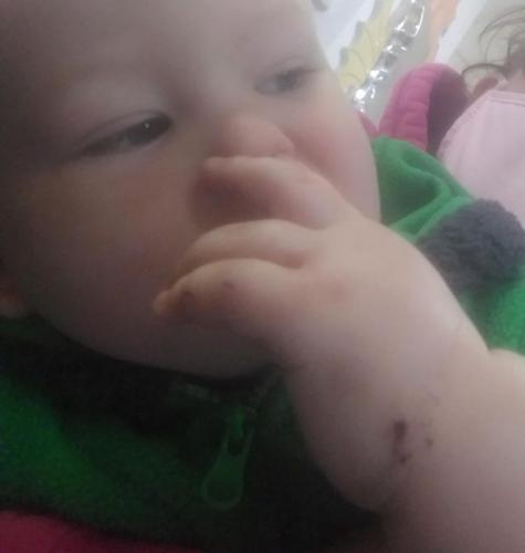 Мама обнаружила крошку-сына в кроватке с укусами на руках. Понадобился охранник, стоило увидеть незваную няню
