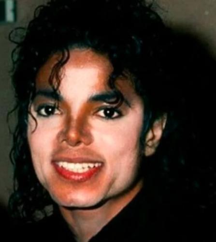 Парень с витилиго показал, как меняется его кожа зимой и летом. Вот почему Майкл Джексон всегда ходил с зонтом