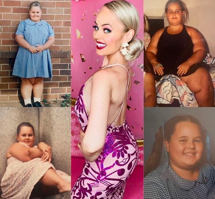 Девушка похудела на 90 кг и стала живым двойником Барби. Её кукольная внешность - удар под дых широкой кости