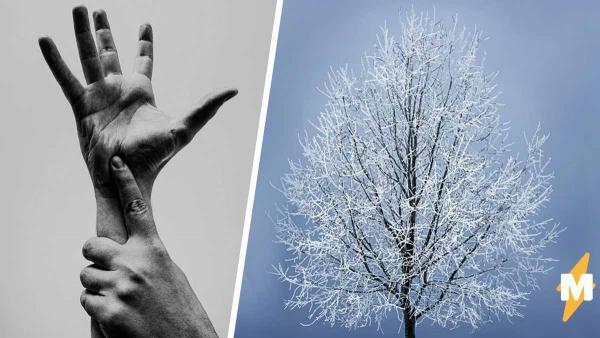 Парню не нужен термометр, чтобы узнать погоду. Понять, что на улице холодно, можно, взглянув на его руки