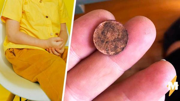 Отец подарил сыну редкую монету и пожалел. Место, где мальчик спрятал подарок, лишило папу и медиков дара речи