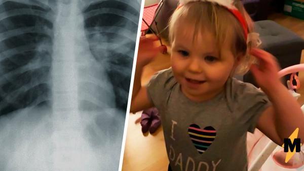 Девочка отказалась от еды, и врачи не могли понять, почему. Рентген показал: четыре месяца её питала батарейка