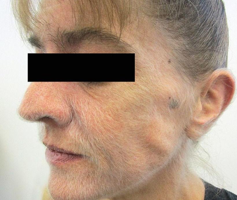 Женщина курила 37 лет, но последствия удивили даже врачей. Шерсть на лице как у медведя - не самое худшее