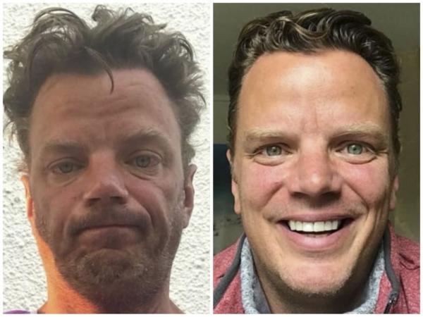 28 фото, которые докажут: алкоголь и наркотики - худший пластический хирург. Люди показали, как их изменил ЗОЖ