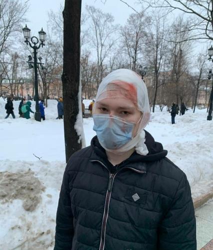 Жестокие задержания, пробитые головы и снежки в правительственное авто. Как прошли протесты в России 23 января
