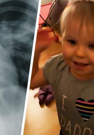Девочка отказалась от еды, и врачи не могли понять почему. Рентген показал: четыре месяца её питала батарейка
