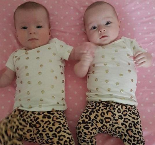 Мать родила близнецов - настолько разных, что люди не верят глазам. Их главное отличие в лицах, а в размерах