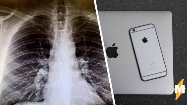 Врачи сделали пациенту рентген и не поверили глазам. Снимок показал: больного можно подключить по Bluetooh