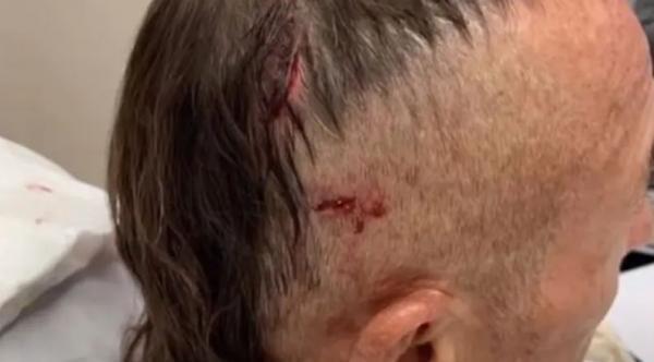 Пловец победил в схватке с боссом крокодилов и вышел из воды. Увидев раны, врач понял: парня спасла его голова