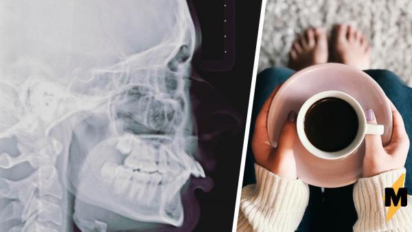 """Пациентка показала рентген черепа и напомнила о """"Симпсонах"""". Чудеса начались, когда люди увидели лицо девушки"""