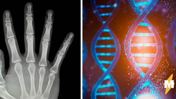 Студент рентген-снимком доказал, что Люди Икс - реальны. Кажется, природа ошиблась, дав людям всего 5 пальцев