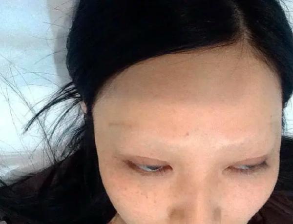 Студентка сделала брови и стала двойником Голлума. Теперь она дрожит над внешностью, но волосы уже не вернуть