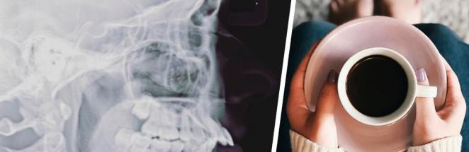 Пациентка показала рентген черепа — и такие же у Симпсонов. Чудеса начались, когда люди увидели лицо девушки
