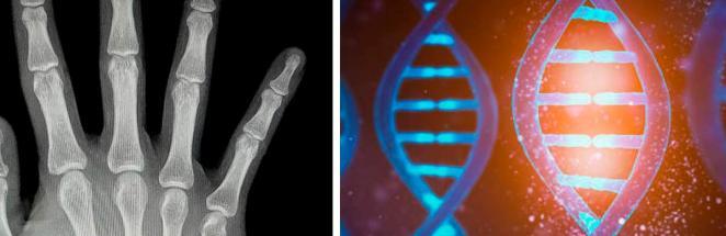 Студент рентген-снимком доказал, что Люди Икс реальны. Кажется, природа ошиблась, дав нам всего пять пальцев