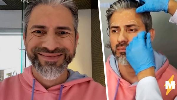 Мужчина показал, как изменилось его лицо после ботокса. Пара инъекций – и мимика осталась только во снах