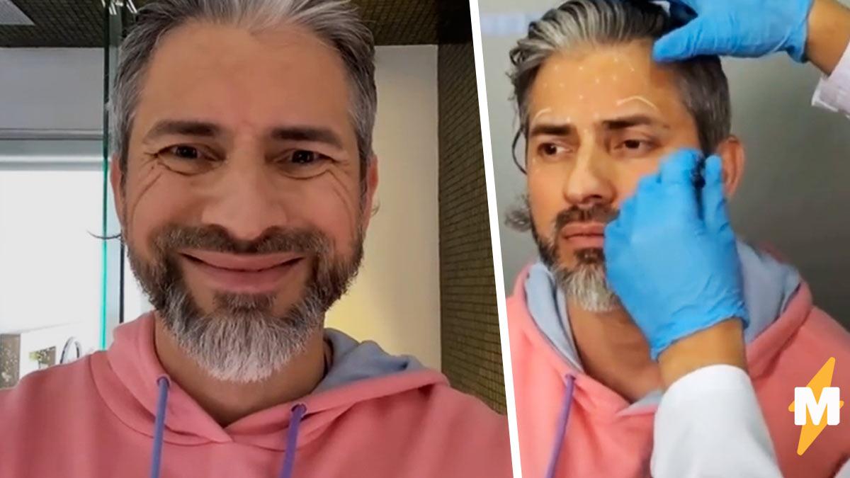 Мужчина показал, как изменилось его лицо после ботокса. Пара инъекций  и появился новый человек