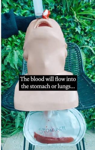 Почему нельзя задирать голову, когда идёт кровь из носа. Фельдшер показала, чем опасен трюк, и её манекен жаль