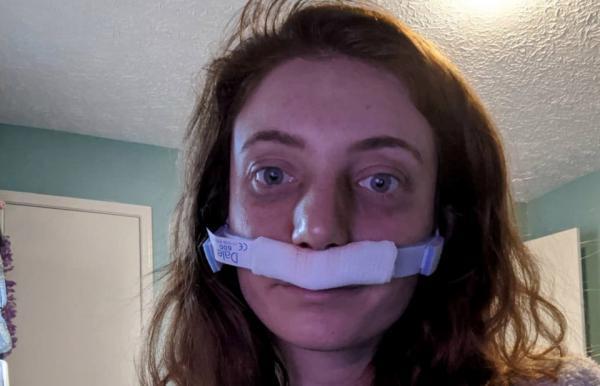 Девушка не понимала, как люди умеют дышать с закрытым ртом. Только в 26 лет врач научил её делать также