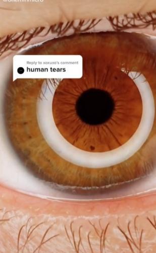 Блогер показал слёзы под микроскопом - и видео не выключить. Нарезание лука ещё никогда не было таким красивым