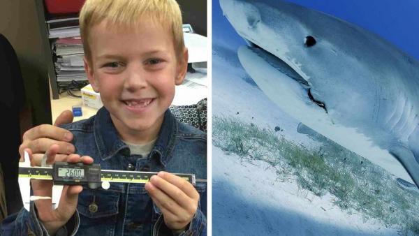 Мальчик шёл к стоматологу, а попал в Книгу рекордов. Таким зубам, как у него, позавидует даже белая акула
