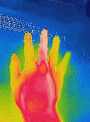 Что происходит в теле после ушиба, показал на снимке реддитор. Феерия красок на тепловизоре - лишь самое малое