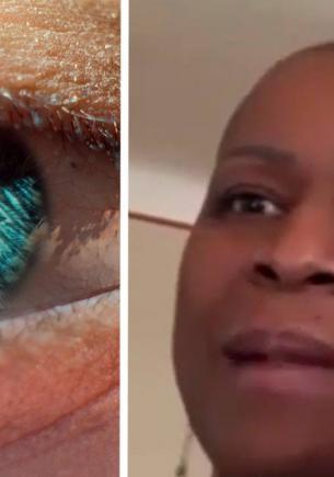 Пациентка посреди ночи закапывала в глаза обычные капли. А спустя секунду поняла — во флаконе был клей