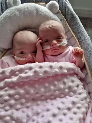 Мама родила близняшек, но детей своих увидела не сразу. Ещё бы, ведь оба они могли уместиться у неё на ладони