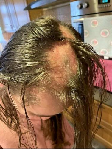 Школьницу травили из-за причёски, и она сдалась. Но при виде стрижки девочки появляется много вопросов