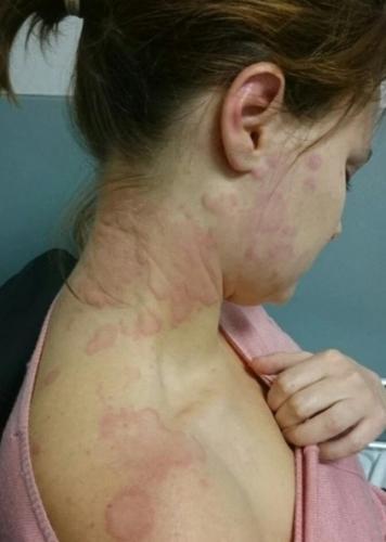 У служащей банка нашли аллергию на работу, и лекарство - укол зависти для любого. Ей прописали путешествие