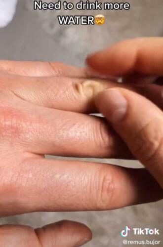 Врач показал, как легко выявить у себя обезвоживание. Чтобы поставить диагноз, нужно 2 пальца