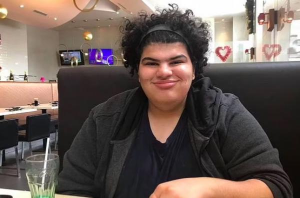 Студент решил похудеть, но, кажется, сменил лицо. Поверить, что на фото до и после один человек будет сложно
