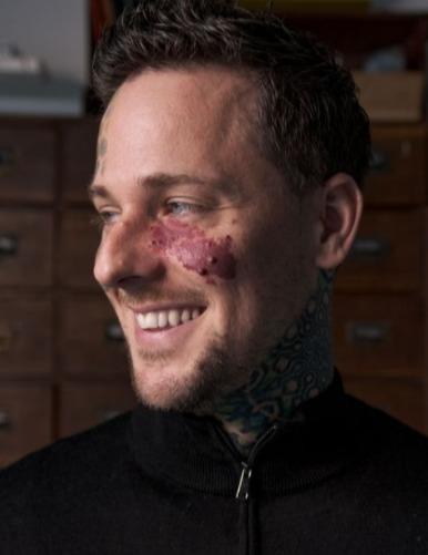 Фотограф придумал, как отвлечь внимание от родимого пятна на лице. Теперь выше его шеи прохожие не смотрят