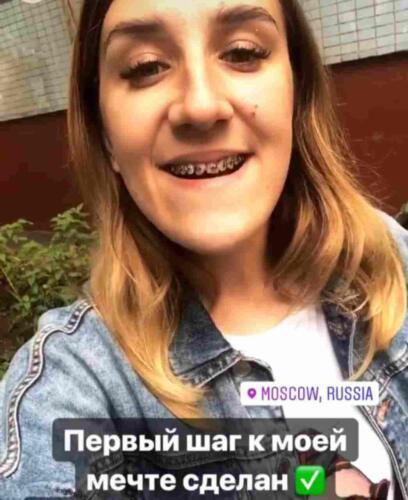 Хирурги два раза ломали челюсть россиянки, чтобы она стала довольна своим овалом лица
