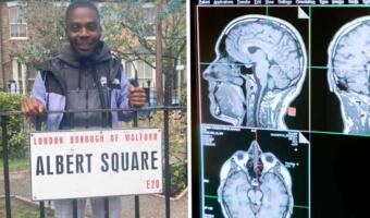 Больной шизофренией рассказывает о своей жизни с диагнозом и помогает другим людям