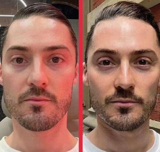 Убрать отёки с лица можно за 30 минут с помощью массажа, считает косметолог