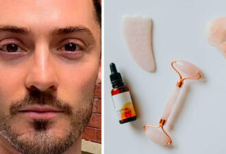 Убрать отёки с лица можно за 30 минут с помощью упражнений, считает косметолог