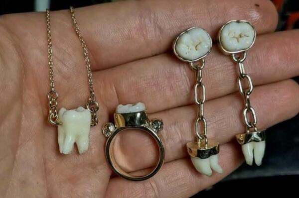 Ювелирша из Австралии делает незабываемы украшения. Ведь они из человеческих материалов