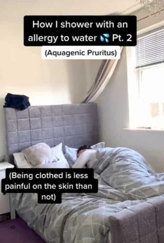 Тиктокерша с редкой аллергией на воду показала на видео, что принимает душ с тонометром