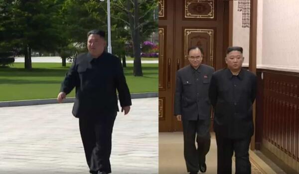 Журналисты заметили на голове Ким Чен Ына пластырь и строят версии о болезни
