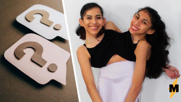 Сиамские близнецы Кармен и Лупита раскрыли секреты своей жизни. Читать мысли друг друга они не могут