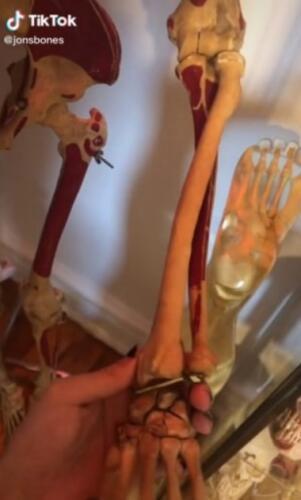 Почему дом тиктокера похож на хранилище скелетов? Всё дело в том, что блогер изучает науку о костях